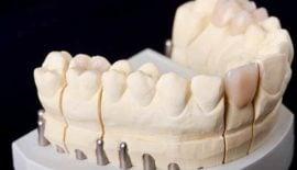 Zahnkrone & Zahnbrücke