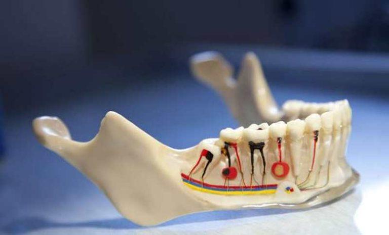 Warum schmerzt der Zahn nach einer Wurzelbehandlung