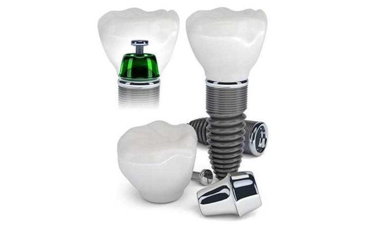 Preise für Zahnimplantate in Spanien